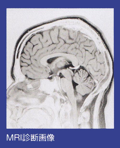 MRI診断画像例2