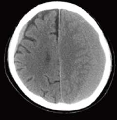 慢性硬膜下血腫