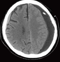 下 膜 慢性 血腫 硬